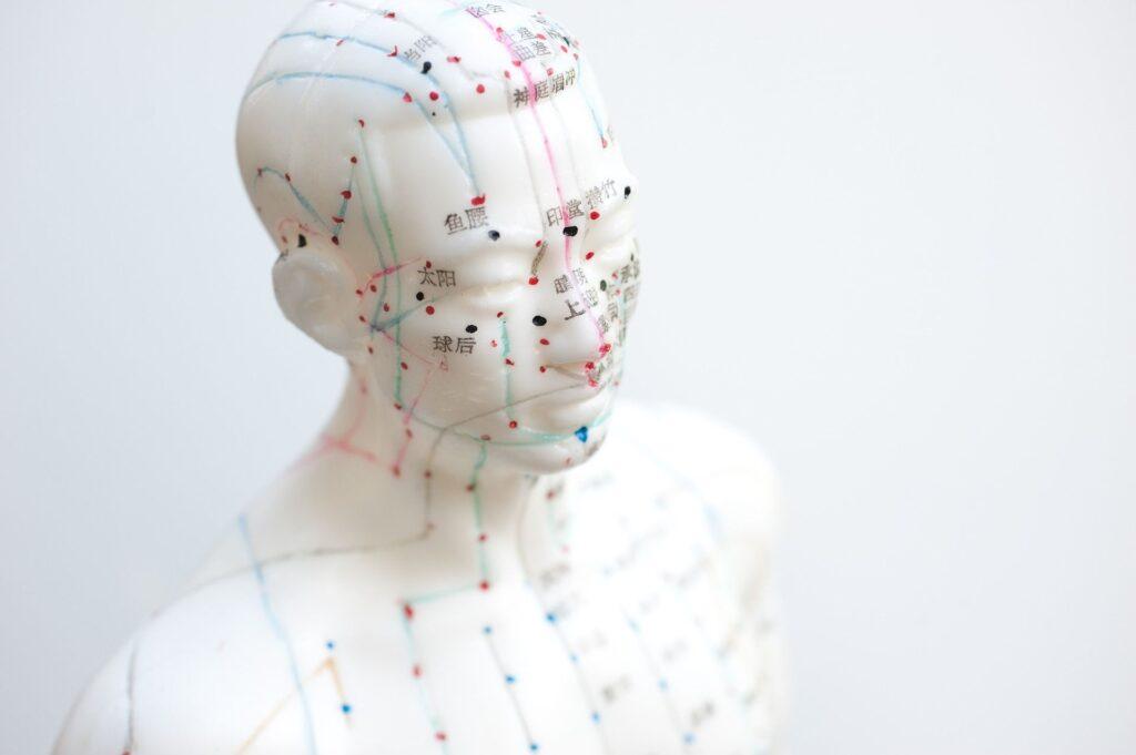 akupunktura odnowa